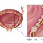 Καρκίνος Της Ουροδόχου Κύστεως
