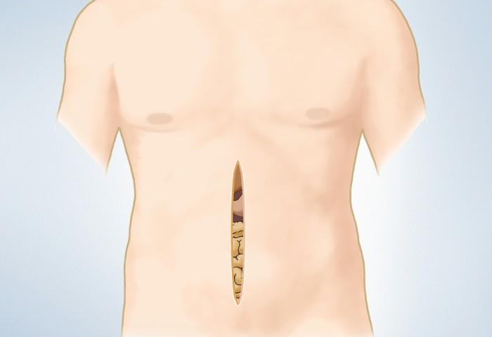 ανοικτή χειρουργική